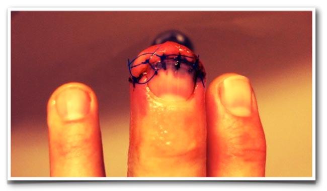 01-Finger